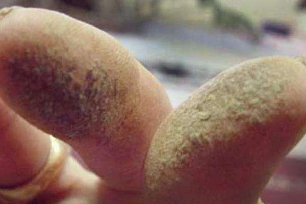 Hash machen mit Handwalzen