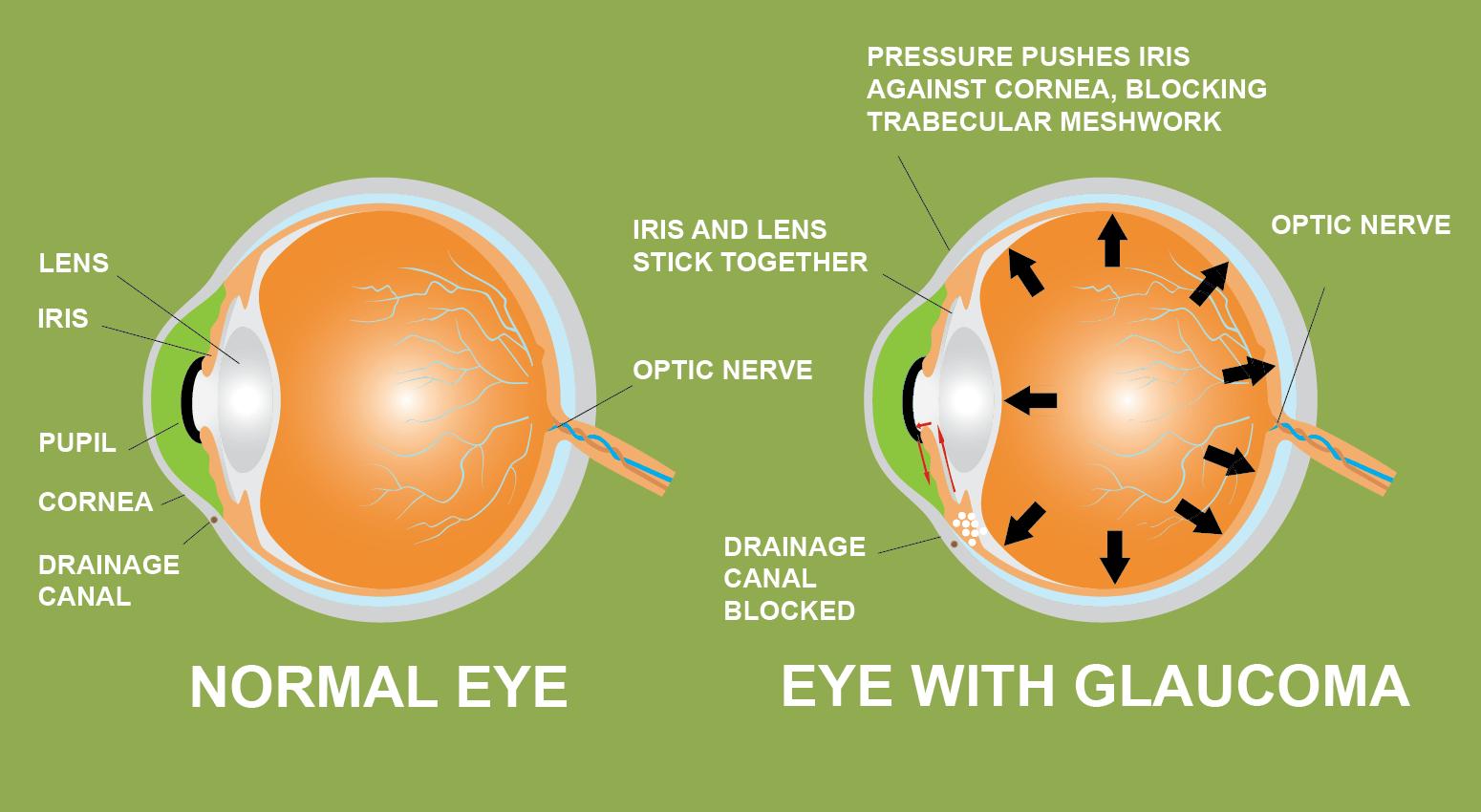 Glaukom Iris Objektiv Pupille Hornhautentwässerung Kanal Cannabis verhindern