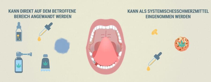 Wie Cbd Bei Zahnschmerzen Helfen Kann