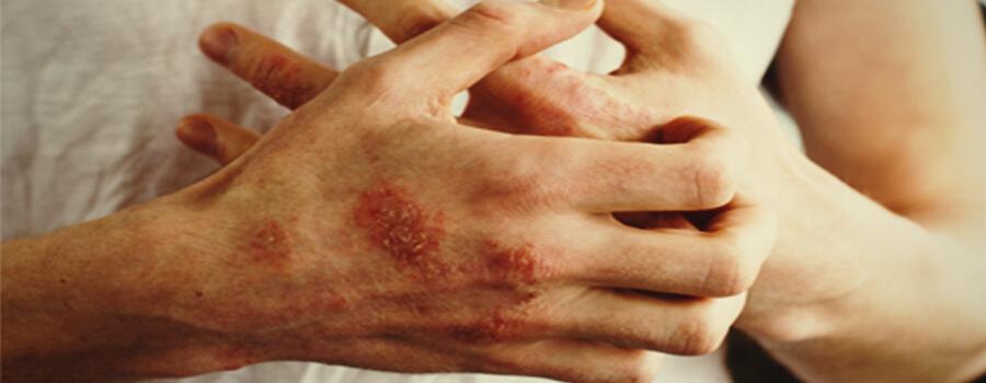 Ekzem und Allergien