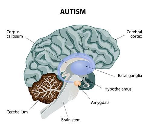cannabis Autismus